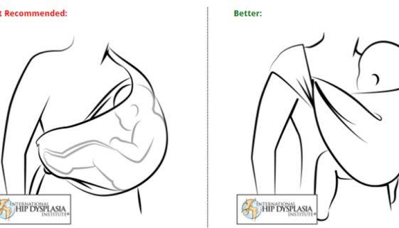Sling-causa-problemas-de-quadril-Dr-David-Nordon-Ortopedista-Infantil