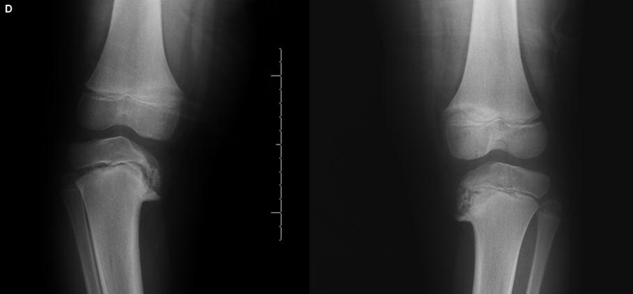 Tudo o que você precisa saber sobre a Doença de Blount-Dr-David-Nordon-Ortopedista-Infantil