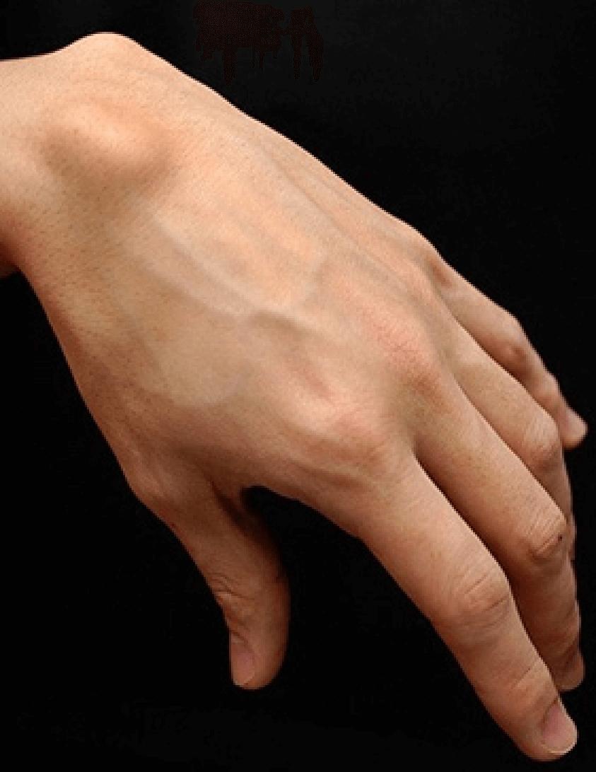 Cisto sinovial-Dr-David-Nordon-Ortopedista-Infantil