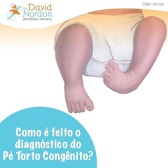 Como é feito o diagnóstico do Pé Torto Congênito-David-Nordon-Ortopedista-Infantil