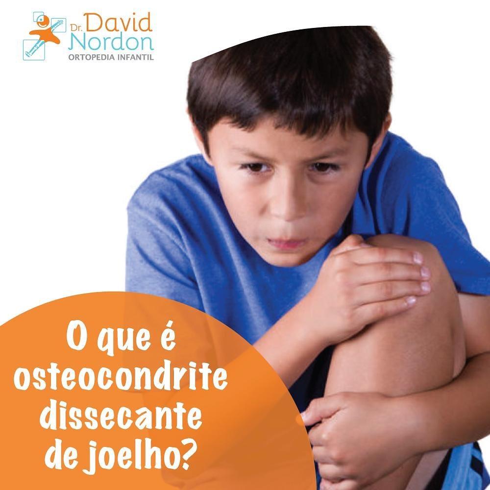 O que é osteocondrite dissecante de joelho-Nordon-Ortopedista-Infantil