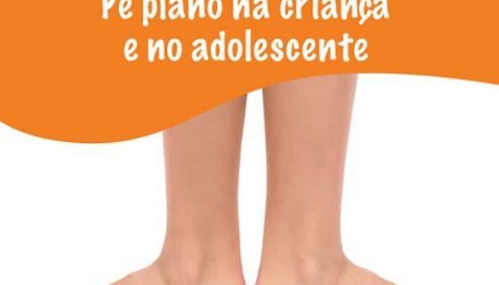 Pé plano na criança e no adolescente-David-Nordon-Ortopedista-Infantil