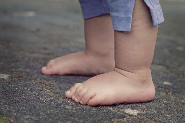 Tudo-o-que-você-precisa-saber-sobre-Pés-Chatos-Planos-Dr-David-Nordon-Ortopedista-Infantil
